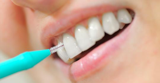 Cómo limpiar entre los dientes