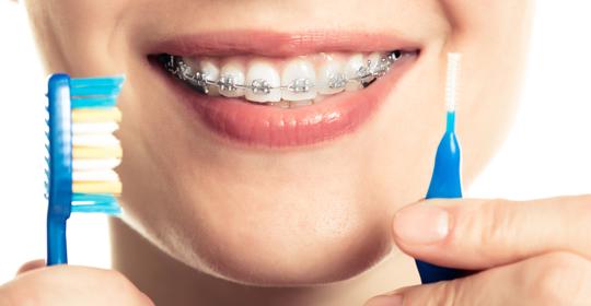 La higiene oral con ortodoncia