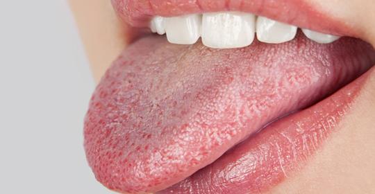 La xerostomía o síndrome de boca seca