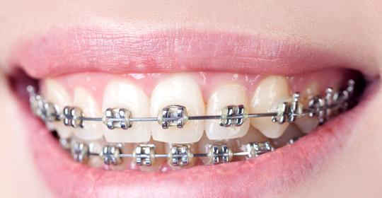 Ortodoncia en La Negrilla