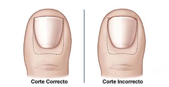 Cómo cortar las uñas de los pies