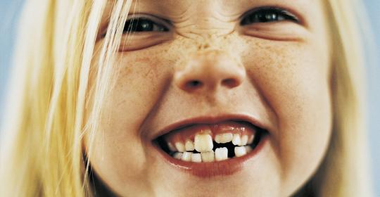 mi hijo aprieta y chirría los dientes