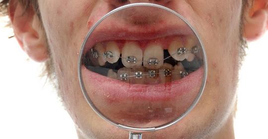 Mitos sobre la ortodoncia