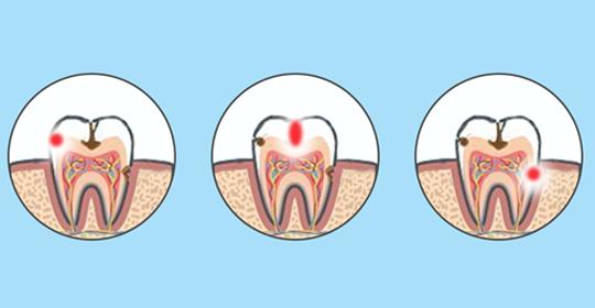 Causas de las caries dentales