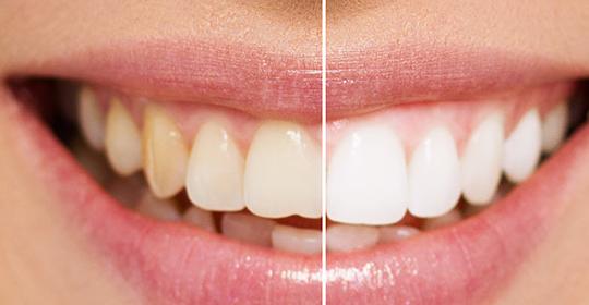Blanqueamiento dental profesional o blanqueamiento dental casero