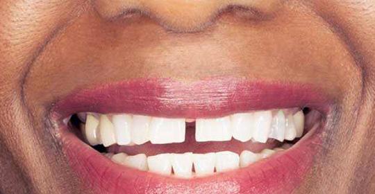 ¿Qué es el diastema dental?