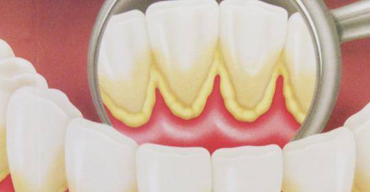 La placa dental y el sarro