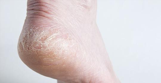 Los talones y los pies secos