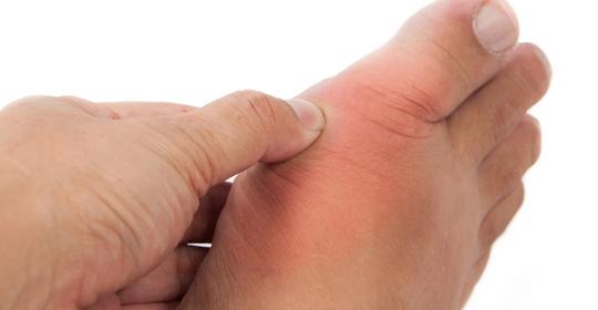 Qué es la gota y cómo puede afectar a nuestros pies