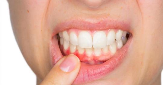 Como aparece la gingivitis
