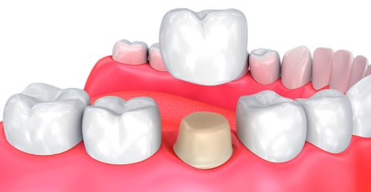 Cuánto duran las coronas dentales