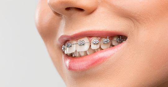 ¿Cuánto tiempo dura la ortodoncia? Fases y etapas