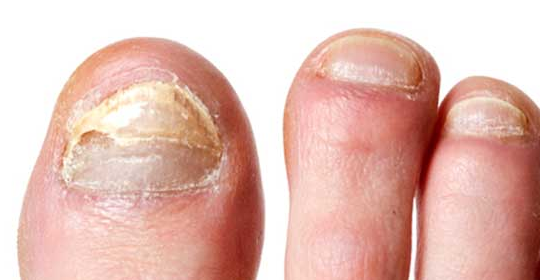 Los hongos que afectan a los pies y las uñas