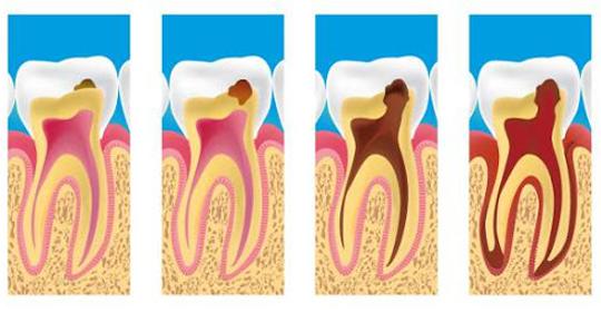 Evolución de las caries dentales